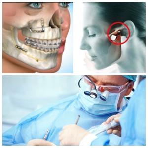 Los Algodones Maxillofacial Surgery