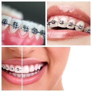 Los Algodones Orthodontics